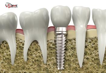 بیومواد فلزی و کاربرد آن Metallic Biomaterials